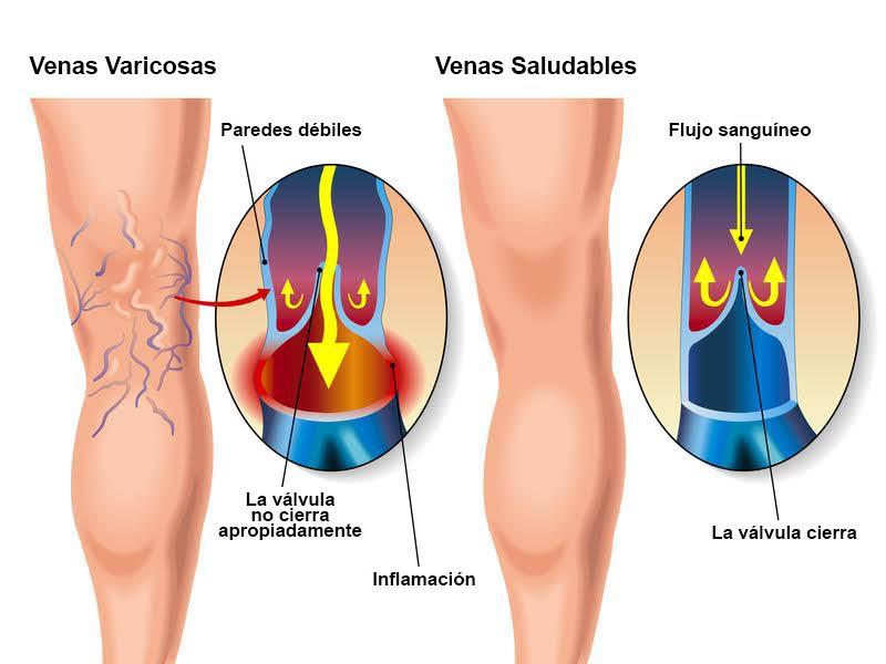 venasvaricosas