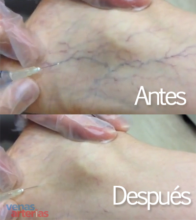 antes y despues escleroterapia