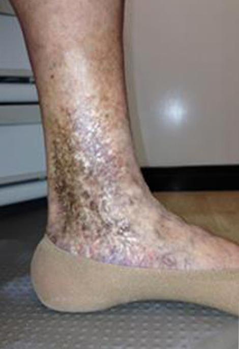 lipodermatoesclerosis