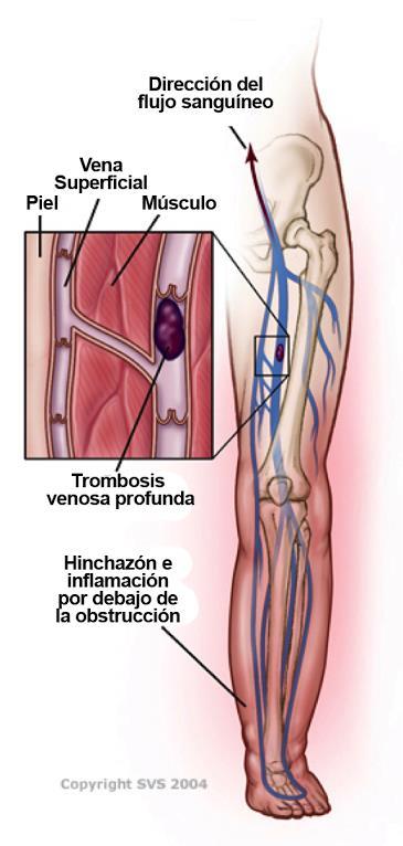 trombosis Venenosa Profunda