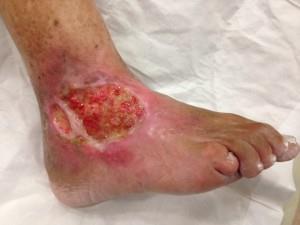 Los pies después de la desaparición de las venas de la foto