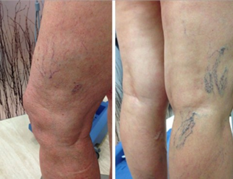Escleroterapia en Caracas