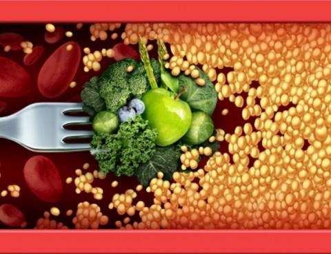 Arterioclerosis colesterol