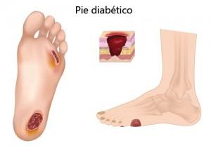 pie diabetico sintomas y riesgos