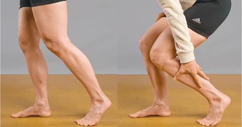 Fuerte-dolor-en-las-piernas