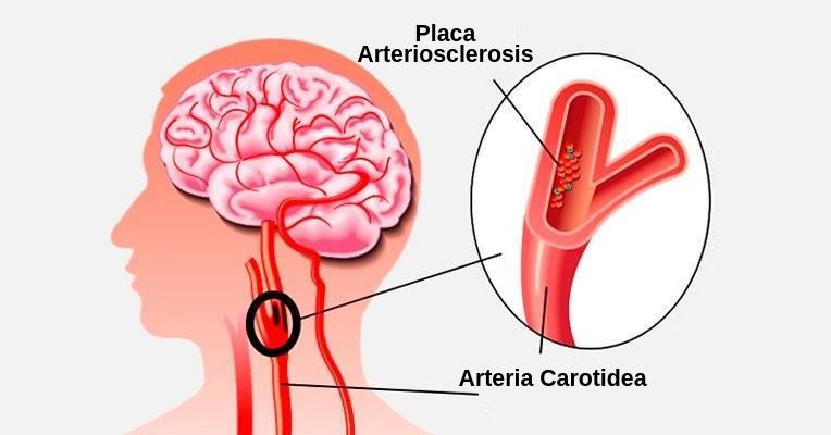 Placa arteriosclerosis - varices acv efectos