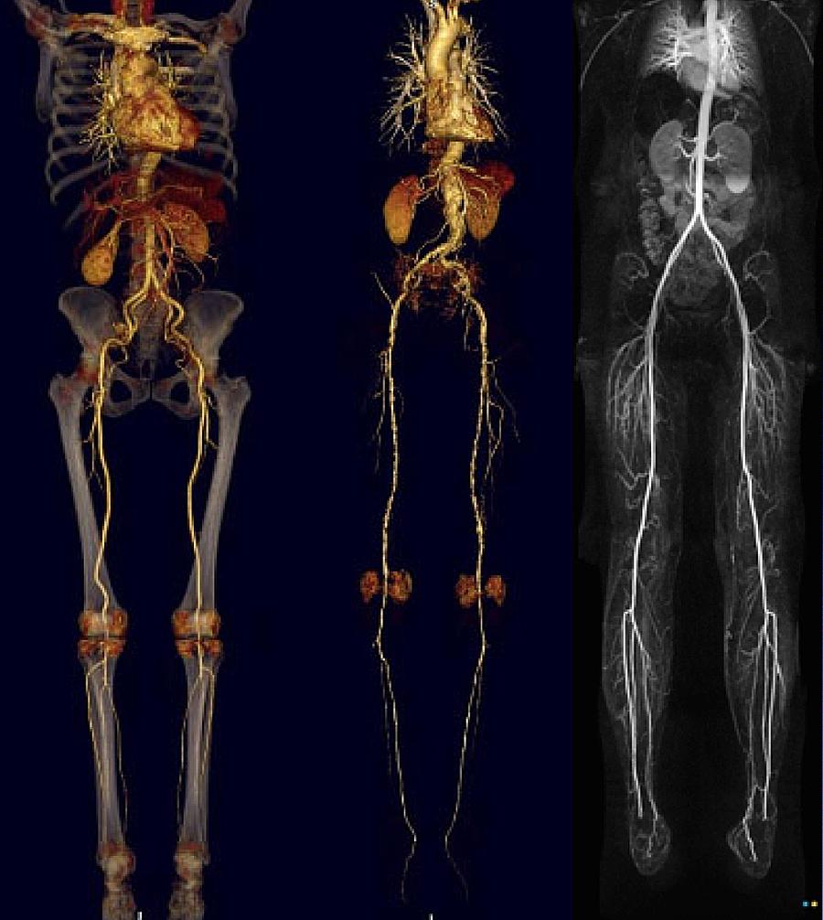 Angiotomografia