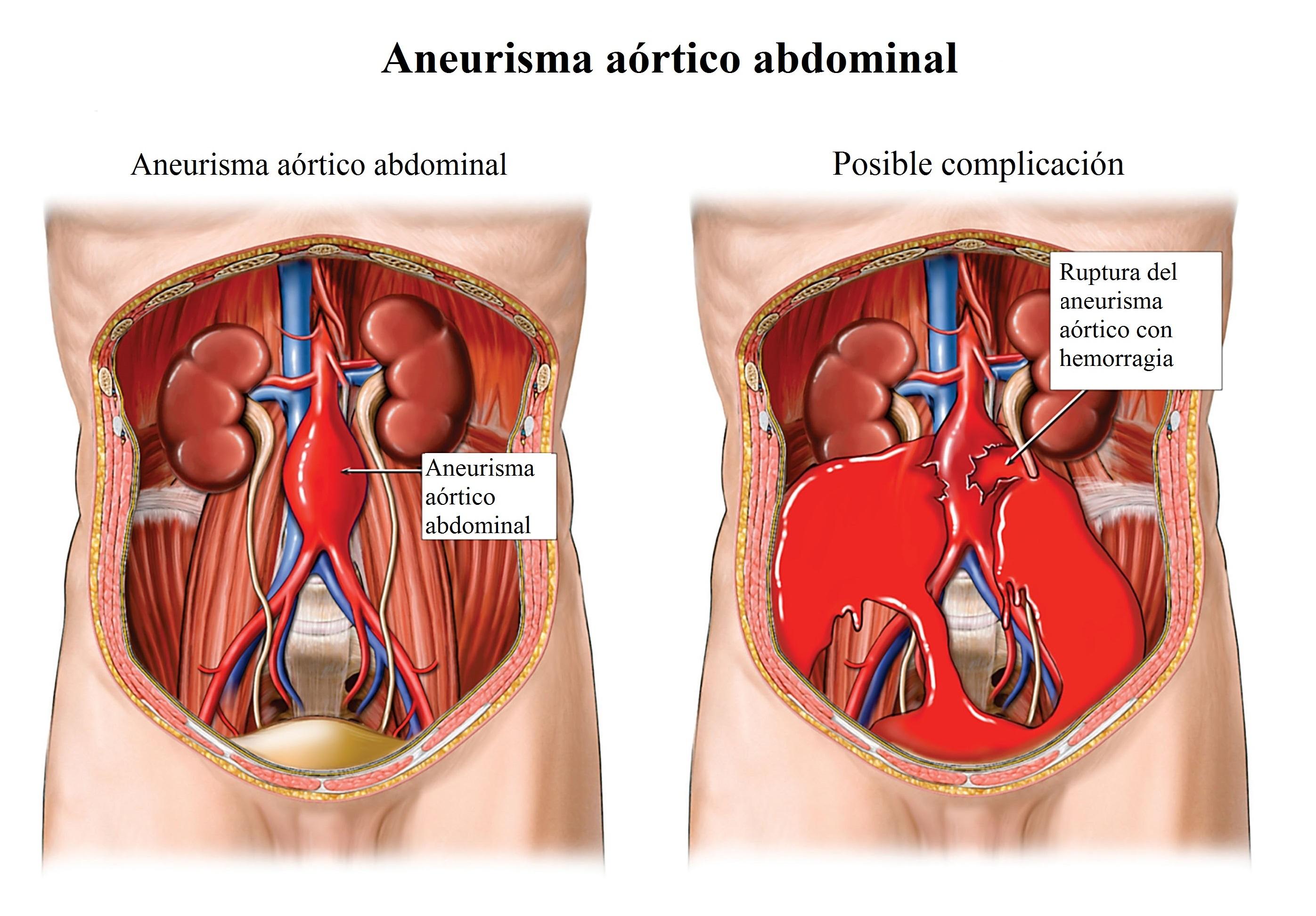 ADTTRE Abdominal Aortic Aneurysm, Rupture with Internal Hemorrhaging (Bleeding)