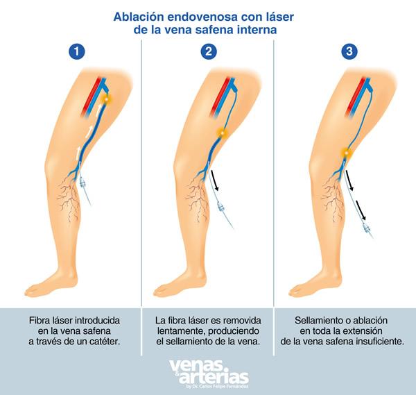 ablevacion endovenosa
