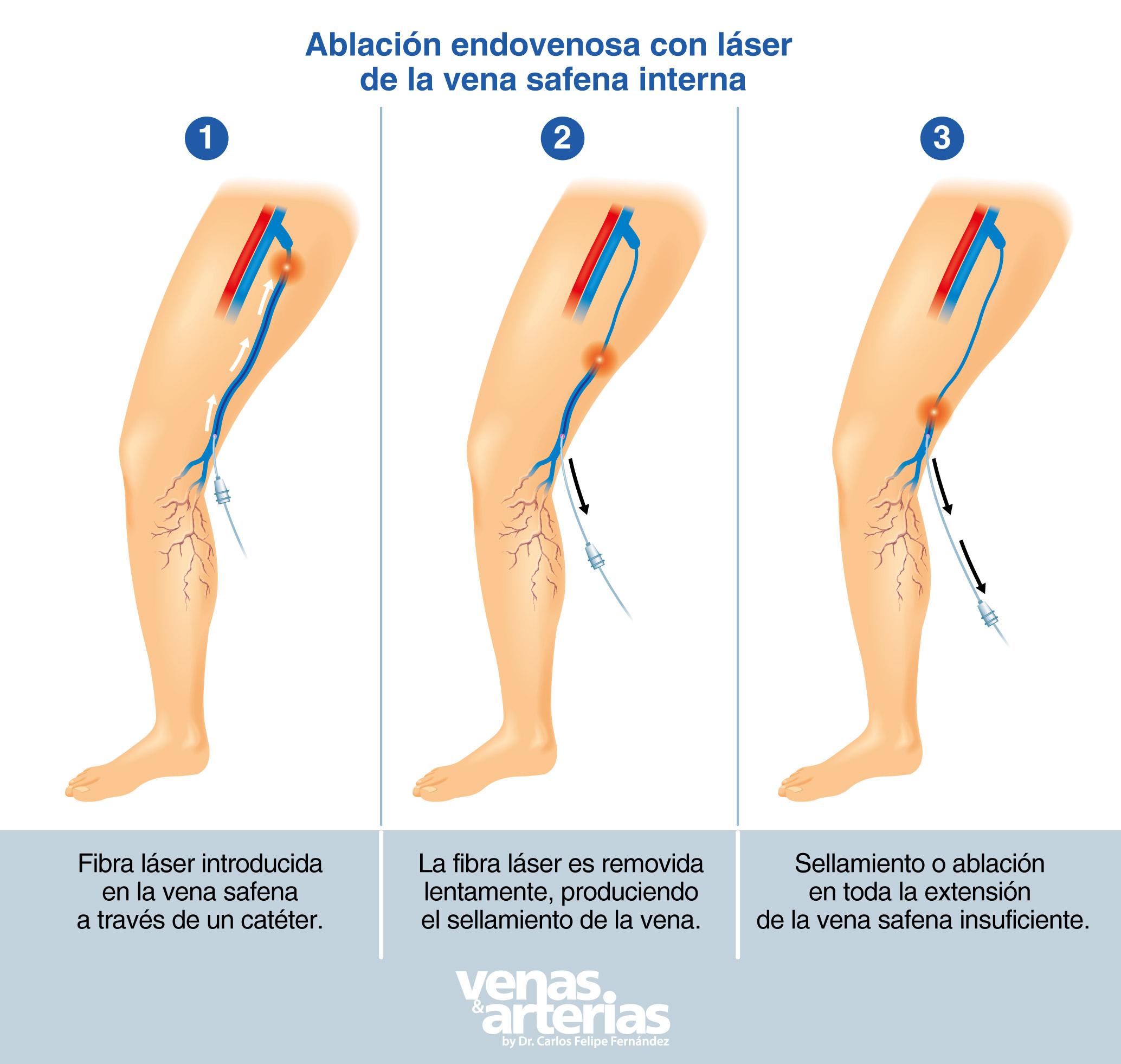 cirugía láser para várices