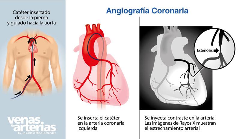 Arteriografia