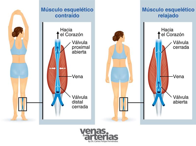 como se originan las varices colas en venezuela