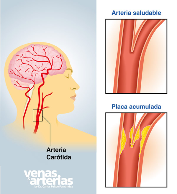 arterias carotidas