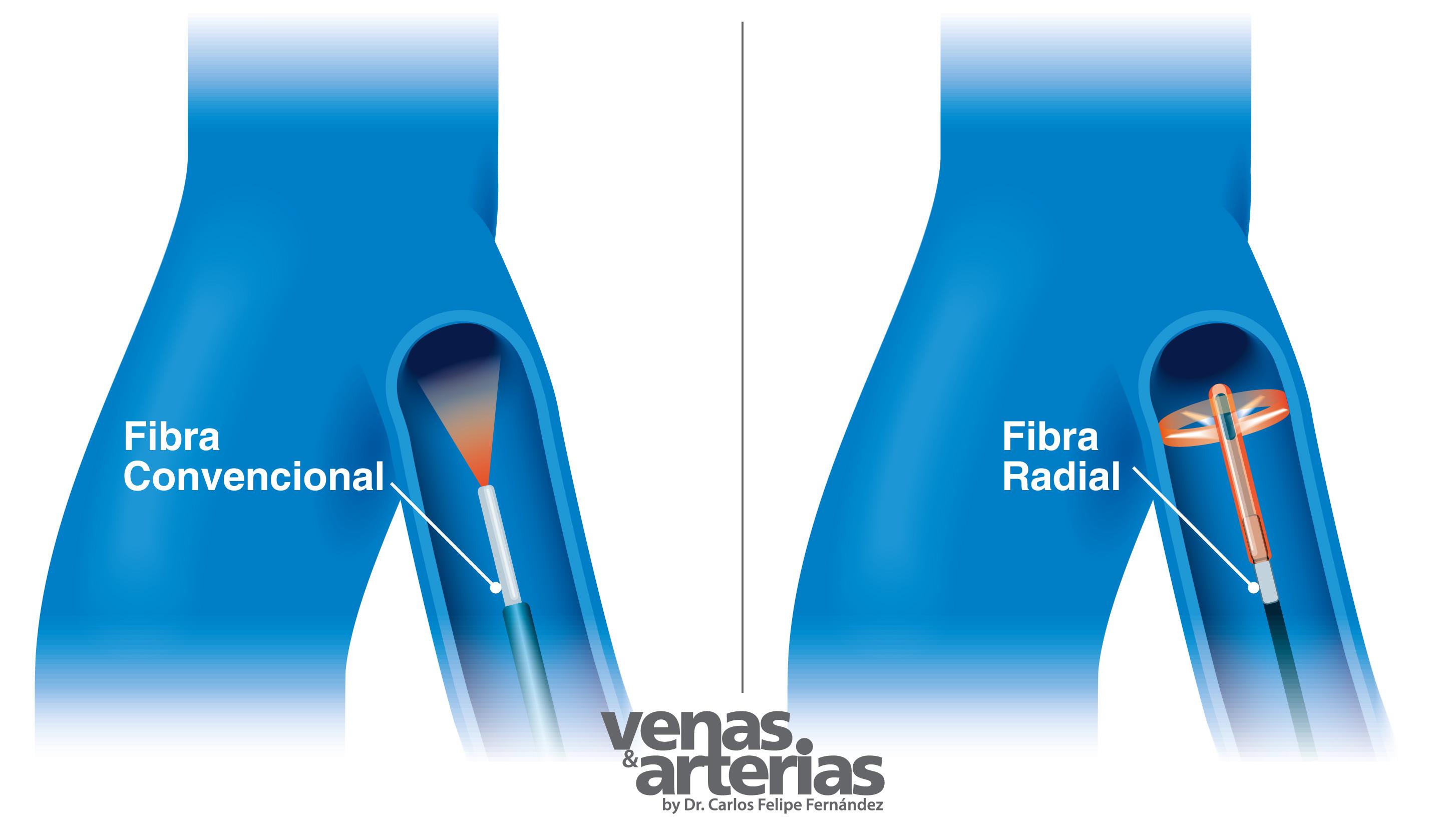 Fibra Radial para quitar varices