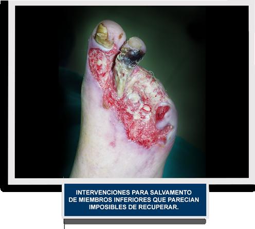 Nuestros logros BYPASS Ulcera