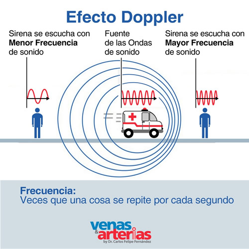 Eco Doppler